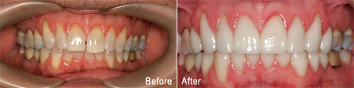 Closeup of a patient's smile before and after dental treatment