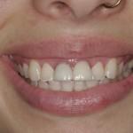 Danielle, an actual patient of Dr. Montrose in Beaverton before dental treatment