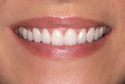 A patient of our Beaverton Oregon dentist after Porcelain Veneers treatment.