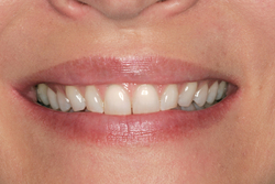 A patient of our Beaverton Oregon dentist before Porcelain Veneers treatment.