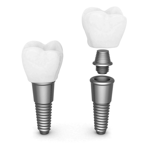 A diagram showing how Beaverton dental Implants fit together