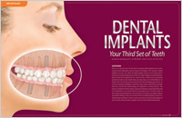 The cover of our article titled Dental Implants - Your Third Set of Teeth