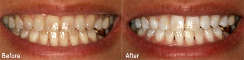 Before and after teeth whitening in Beaverton with the dentists at Smiles Northwest