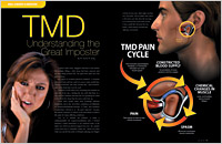 The cover of our article titled TMD - The Great Impostor