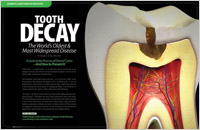 The cover of our article titled What is Tooth Decay? - And How to Prevent It!