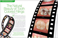 The cover of our article titled The Natural Beauty of Tooth Colored Fillings